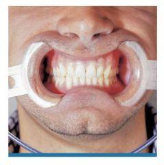 Lip Retractor Kit